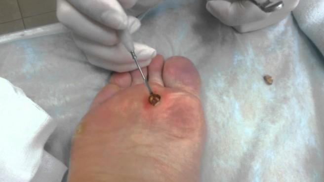 фото шипицы на ногах
