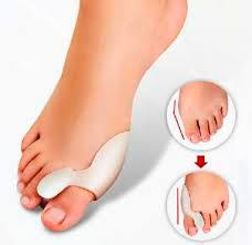Крем от шишек на ногах